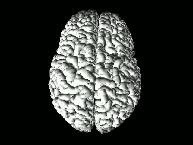 Brain, top